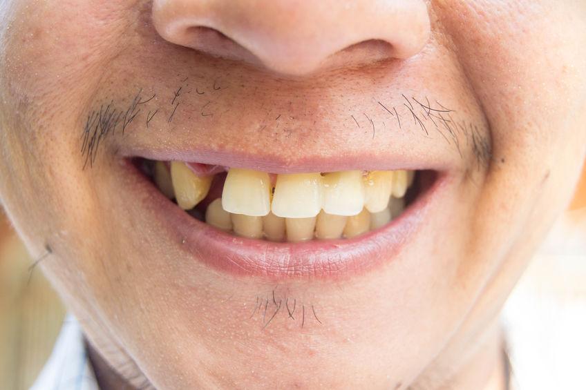 Dentures - Meg Bowtell Dentist